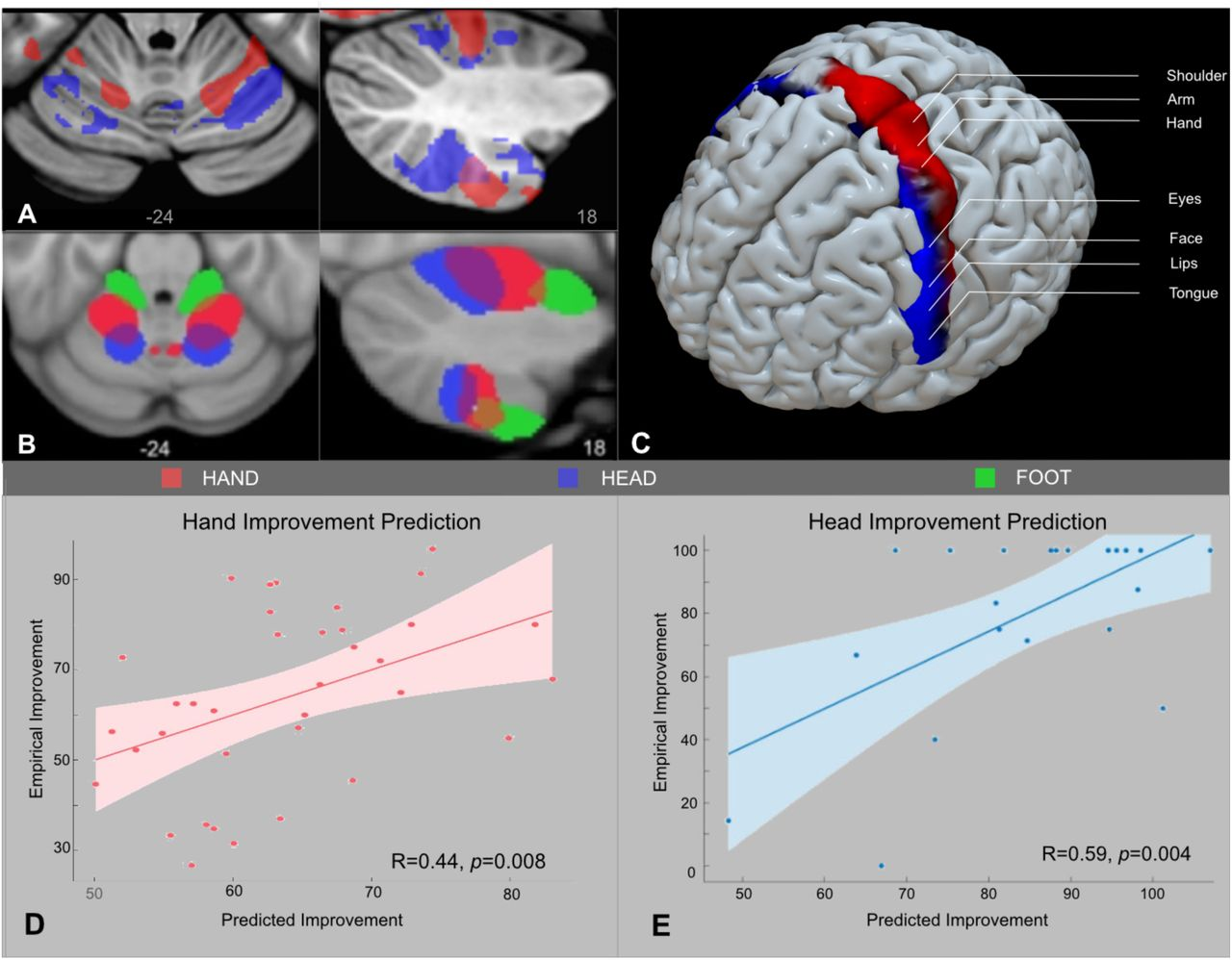 Connectivity profile of thalamic deep brain stimulation to