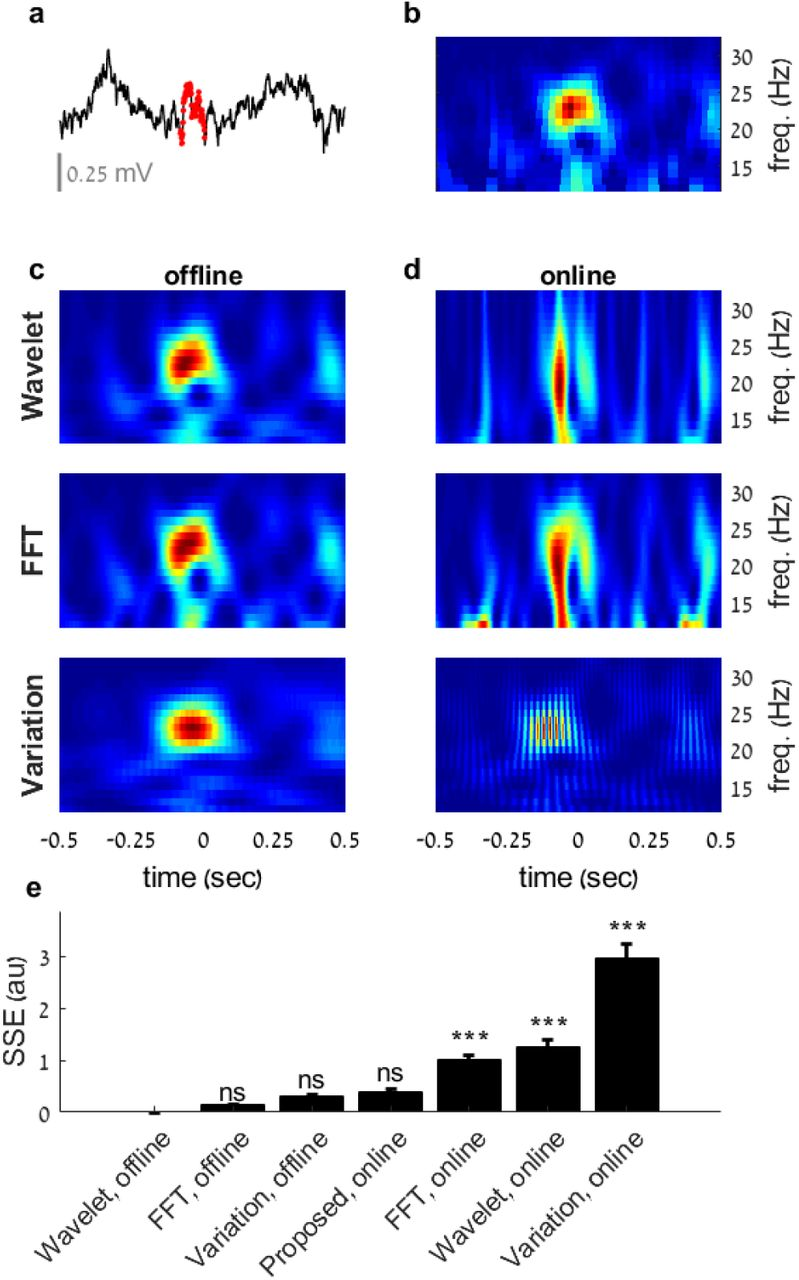 Real-time detection of neural oscillation bursts allows