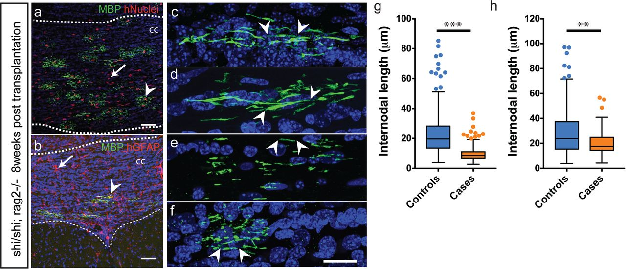 Case and control OPCs transplanted neonatally in the hypomyelinated show reduction in myelin sheath length at 8- and 13-weeks post-transplantation (a,b) Human OPCs transplanted into <t>MBP</t> Shi/Shi ;Rag2 -/- neonates (at P1-P2) efficiently engraft and differentiate to oligodendrocytes (arrowhead in a) and astrocytes (arrow in b) in the white matter (dotted lines) by 8 weeks. Human cells are identified by immunoreactivity against human nuclei (red) and MBP (green) in (a) and with human <t>GFAP</t> (red) and MBP (green) in (b). (c-f) Individual human oligodendrocytes from Control1 and 2 (c,d) and Case2, 4 lines (e.f) were imaged and length of myelin segments measured. Arrowheads demarcate the beginning and end of individual myelin segments visualized in 3D. (g-h) Quantification of average myelin sheath lengths from (c-f) shows a severe reduction in cases at 8 weeks (g) and 13 weeks post transplantation (h). Mean with upper and lower quartiles shown. Scatter points represent outliers. p