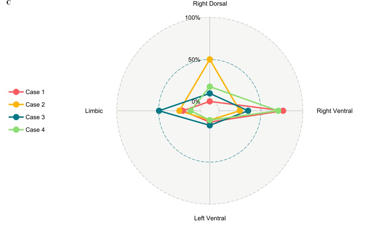 Data-driven detection of latent atrophy factors related to
