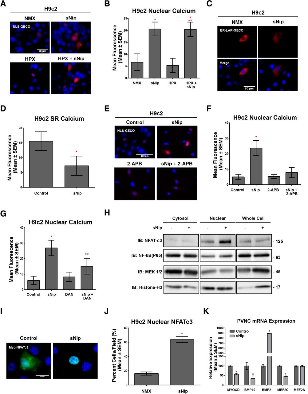 sNip opposes hypoxia-induced neonatal cardiomyocyte proliferation. (A) Immunoblot for sNip expression in H9c2 protein extracts treated with 10 μM misoprostol (Miso) ± 10% O 2 (HPX) for 48 hours. (B) PVNCs treated with pLenti-HA-sNip ± 10% O 2 (HPX) for 48 hours and stained with Tag-it Violet (blue) and calcein-AM (green) and imaged by standard fluorescence microscopy. (C) Quantification of Tag-it Violet positive cells in (B), where the number of blue cells is represented as a percentage (%) of the total number of (green) cells in 10 random fields. (D) Quantification of cells in (B), where cell surface area was calculated for > 80 cells/condition in 10 random fields. (E) H9c2 cells treated as in (A), transfected with scrambled control si-RNA or si-sNip, and stained with Tag-it Violet (blue) and calcein-AM (green) and imaged by standard fluorescence microscopy. (F) Quantification of Tag-it Violet positive cells in (E), where the number of blue cells is represented as a percentage (%) of the total number of (green) cells in 10 random fields. (G) Quantification of H9c2 cells treated with 10% O 2 (HPX) for 48 hours and transfected pcDNA3 (control) or HA-sNip. Peredox-mCherry was used to indicate cytosolic NAD content in all conditions. The ratio of green fluorescence (NADH) to red fluorescent signal (NAD + ) was measured in > 15 random fields across 3 independent experiments. (H) Ratiometric images of H9c2's treated as in (G). Laconic was used to indicate cytosolic lactate content. Cells were imaged by FRET-based microscopy. (I) Quantification of cells in (H), where the FRET-YFP (lactate) signal was divided by the YFP (unbound biosensor) signal in 15 random fields across 3 independent experiments. All data are represented as mean ± S.E.M. *P