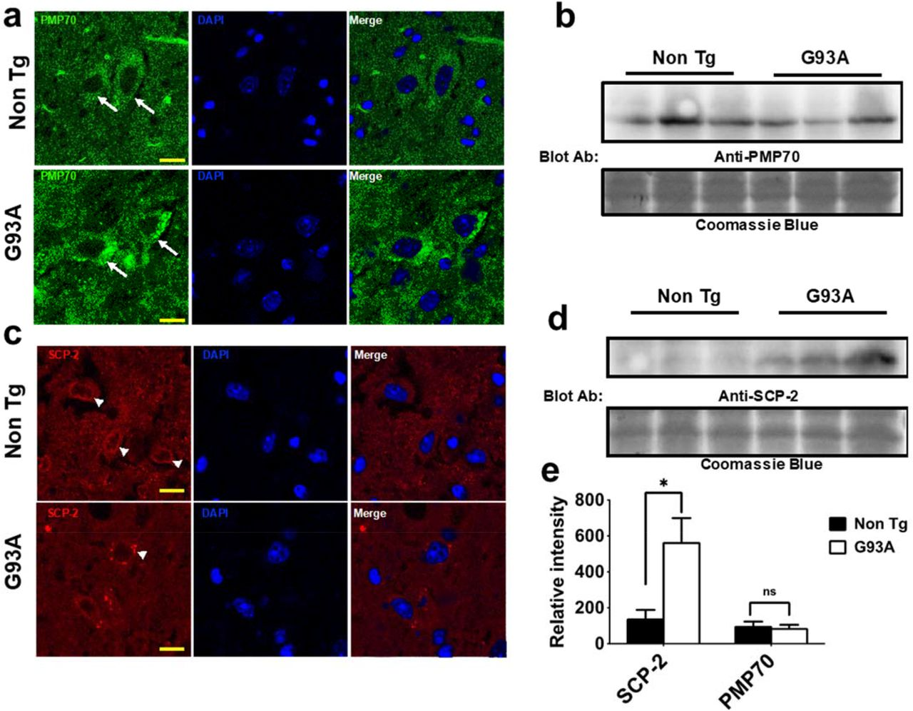 Nuclear lipidome is altered in amyotrophic lateral sclerosis
