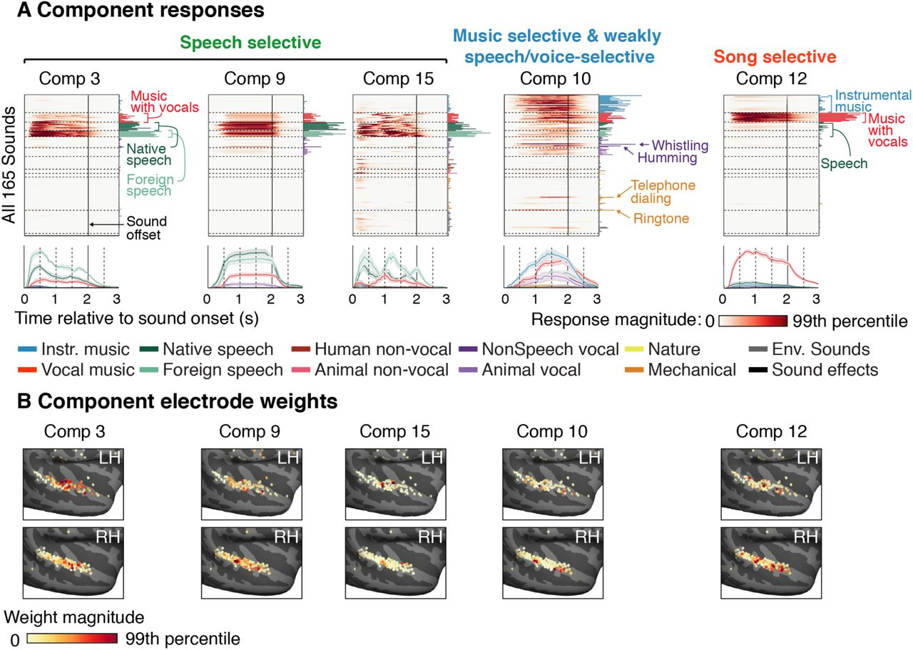 Intracranial recordings from human auditory cortex reveal a neural