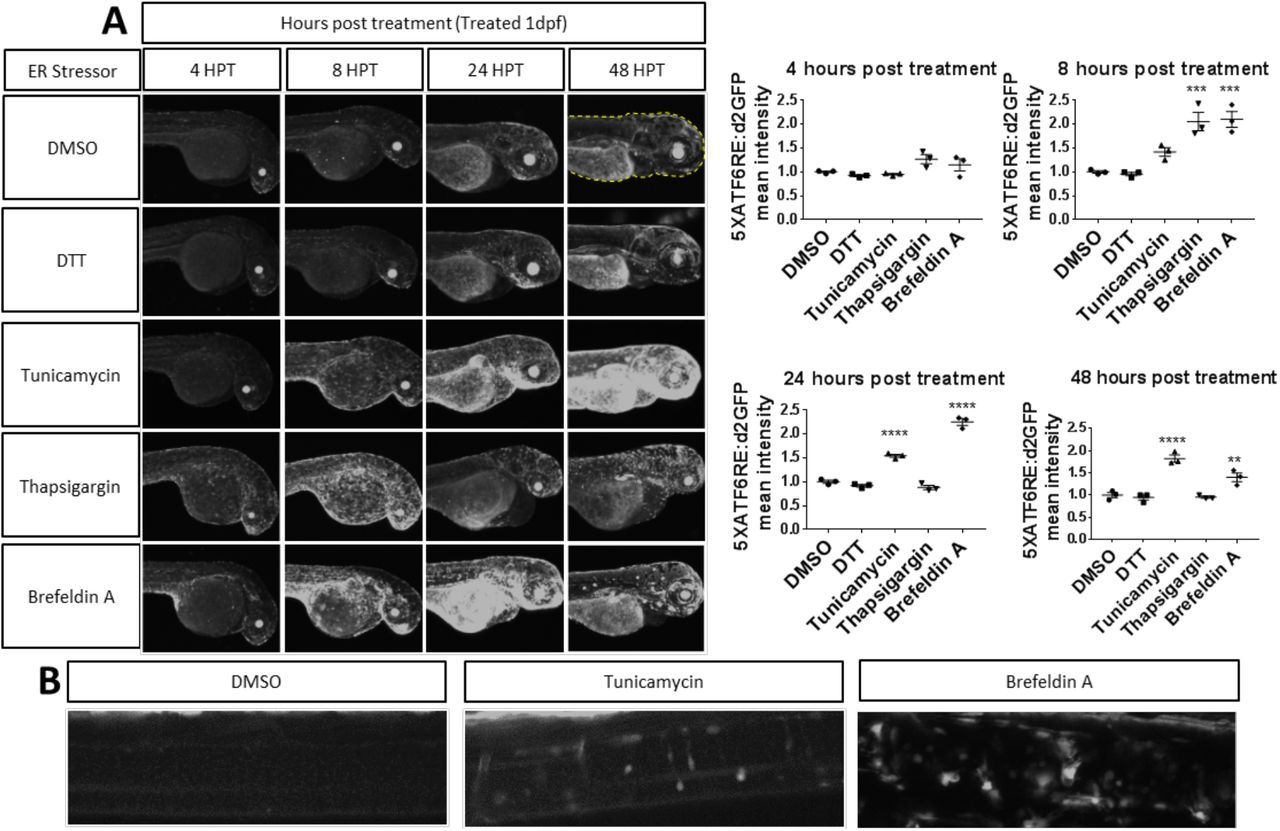 Establishment and validation of an endoplasmic reticulum stress