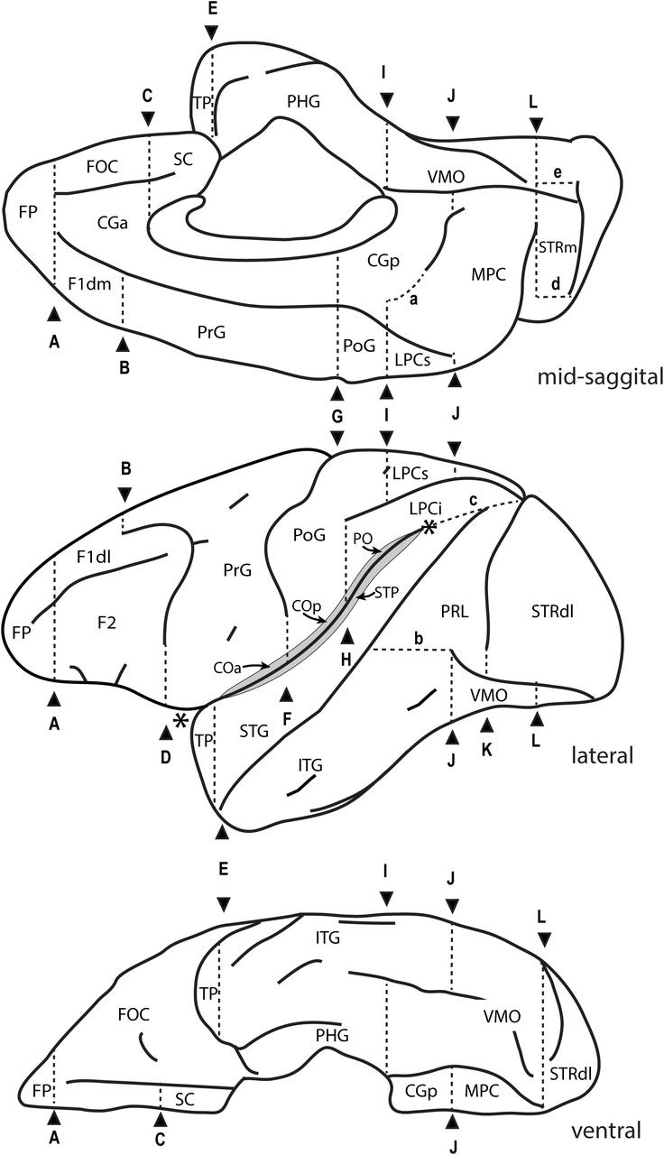 MRI-based Parcellation and Morphometry of the Individual Rhesus