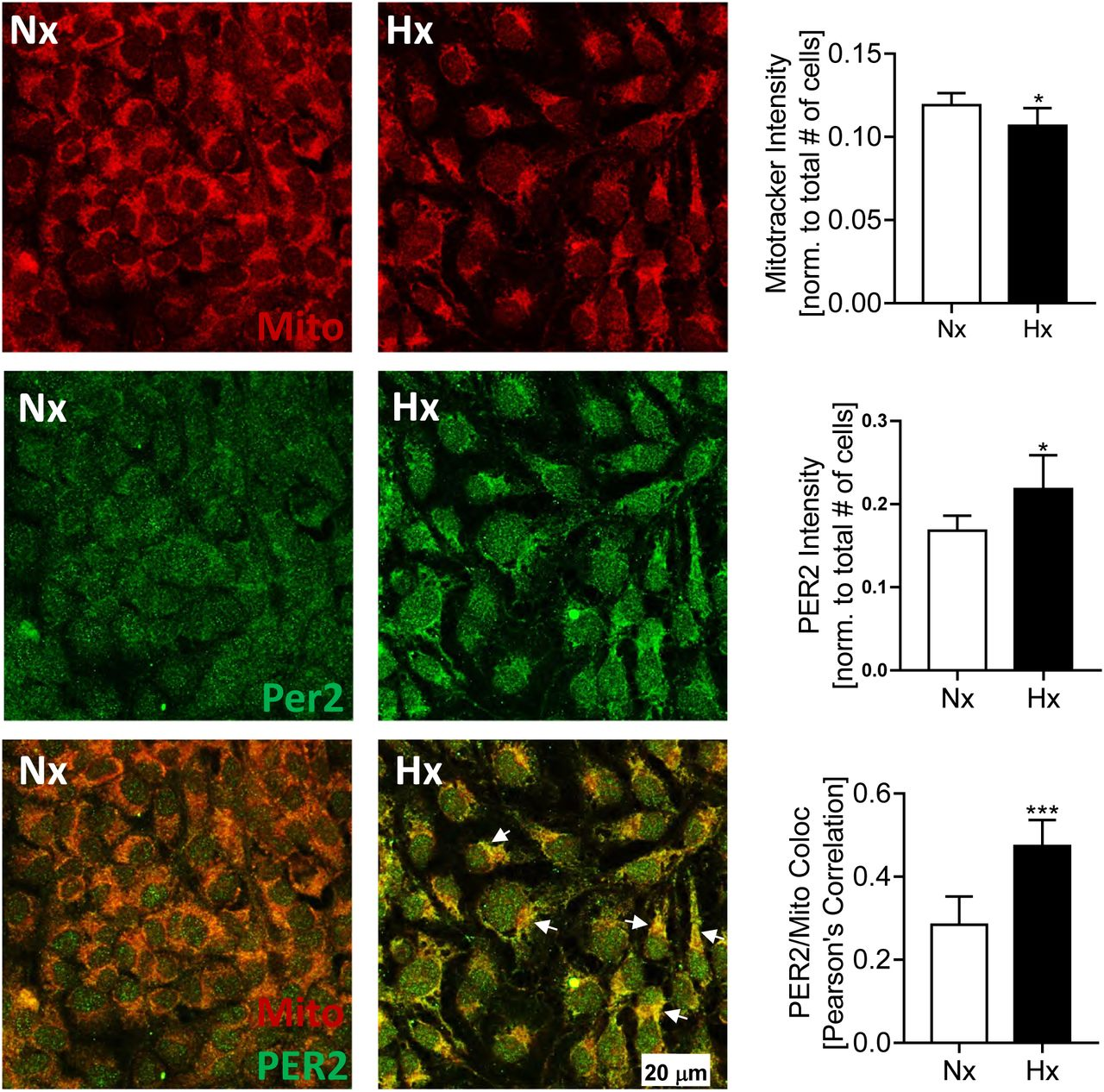 Intense light-mediated circadian cardioprotection via
