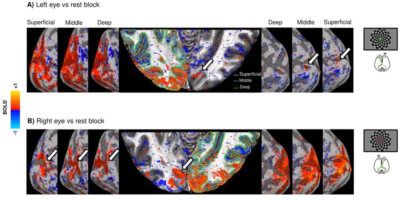 Triple visual hemifield maps in optic chiasm hypoplasia | bioRxiv