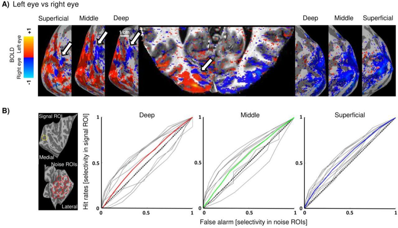 Triple visual hemifield maps in optic chiasm hypoplasia