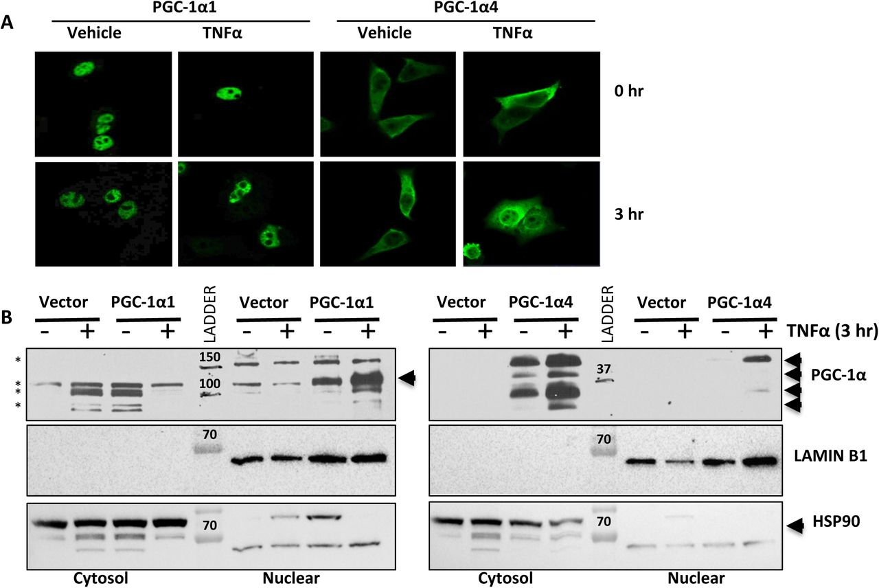 PGC-1α isoforms differentially regulate metabolic genes downstream of TNFα. A-D) mRNA expression of primary mouse hepatocytes over-expressing PGC-1α1, PGC-1α4 or vector alone following 2-hr treatment with 2 ng/mL TNFα or vehicle (n=3). *p