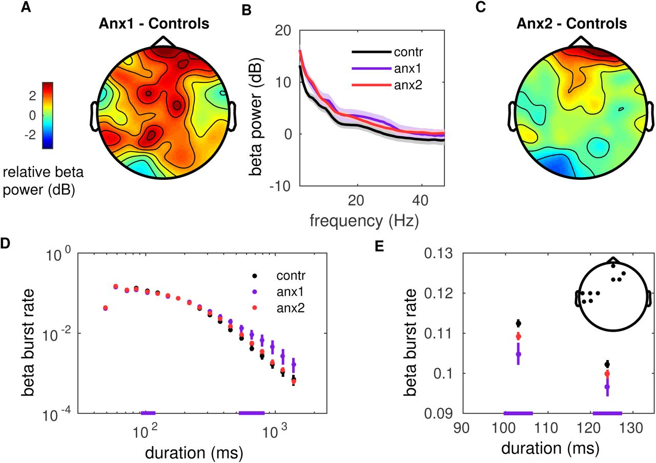 Alterations in the amplitude and burst distribution of sensorimotor
