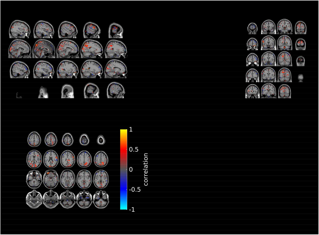 Integrating electric field modelling and neuroimaging to