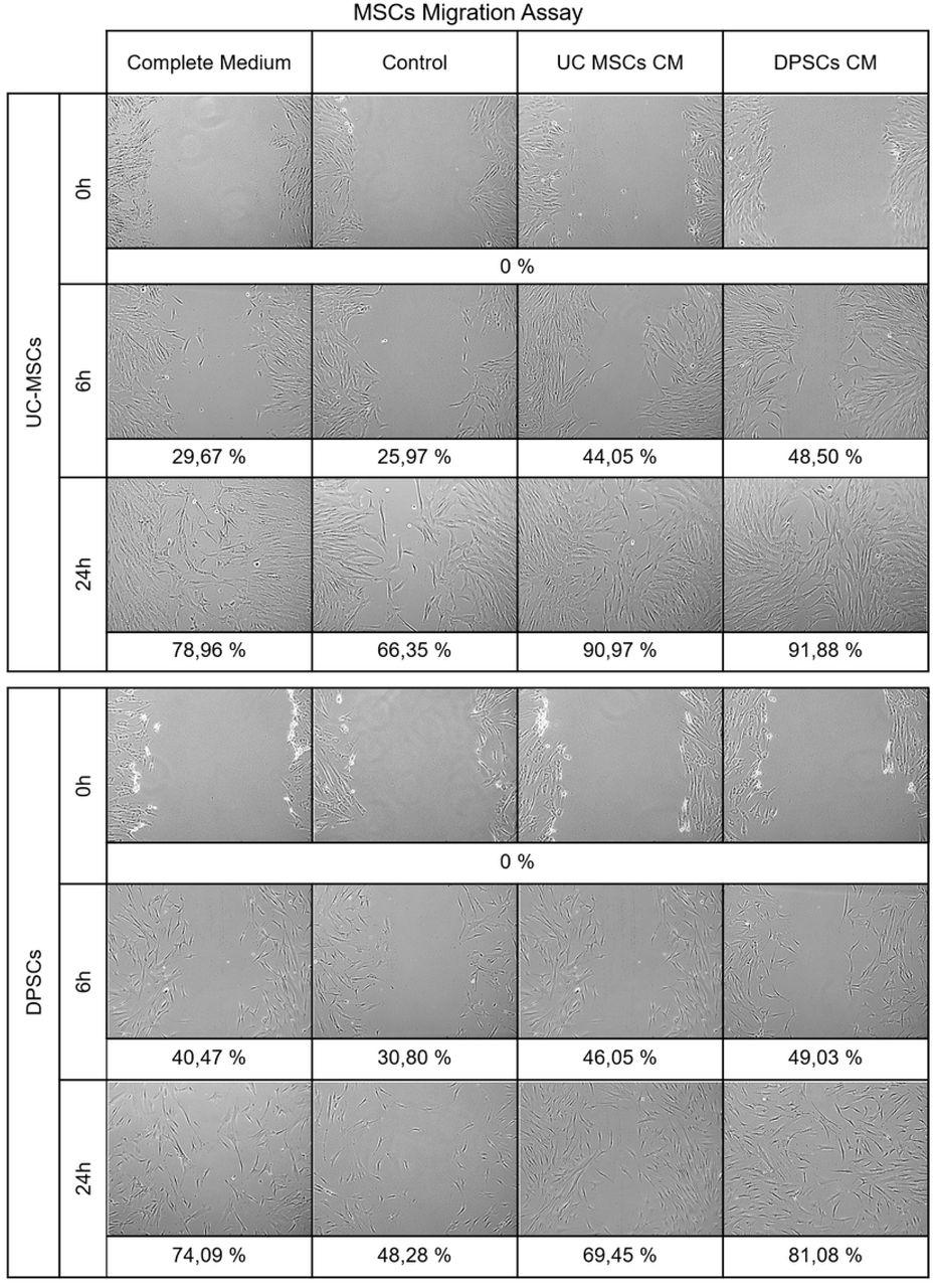 Mesenchymal Stem/ Stromal Cells metabolomic and bioactive