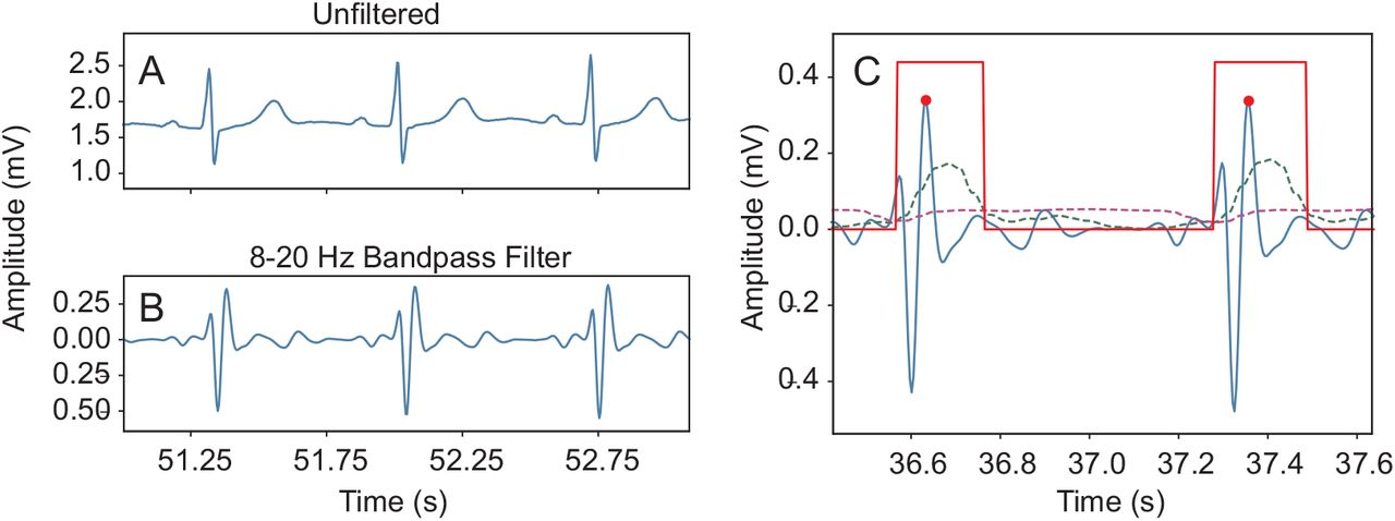 R-peak detector stress test with a new noisy ECG database