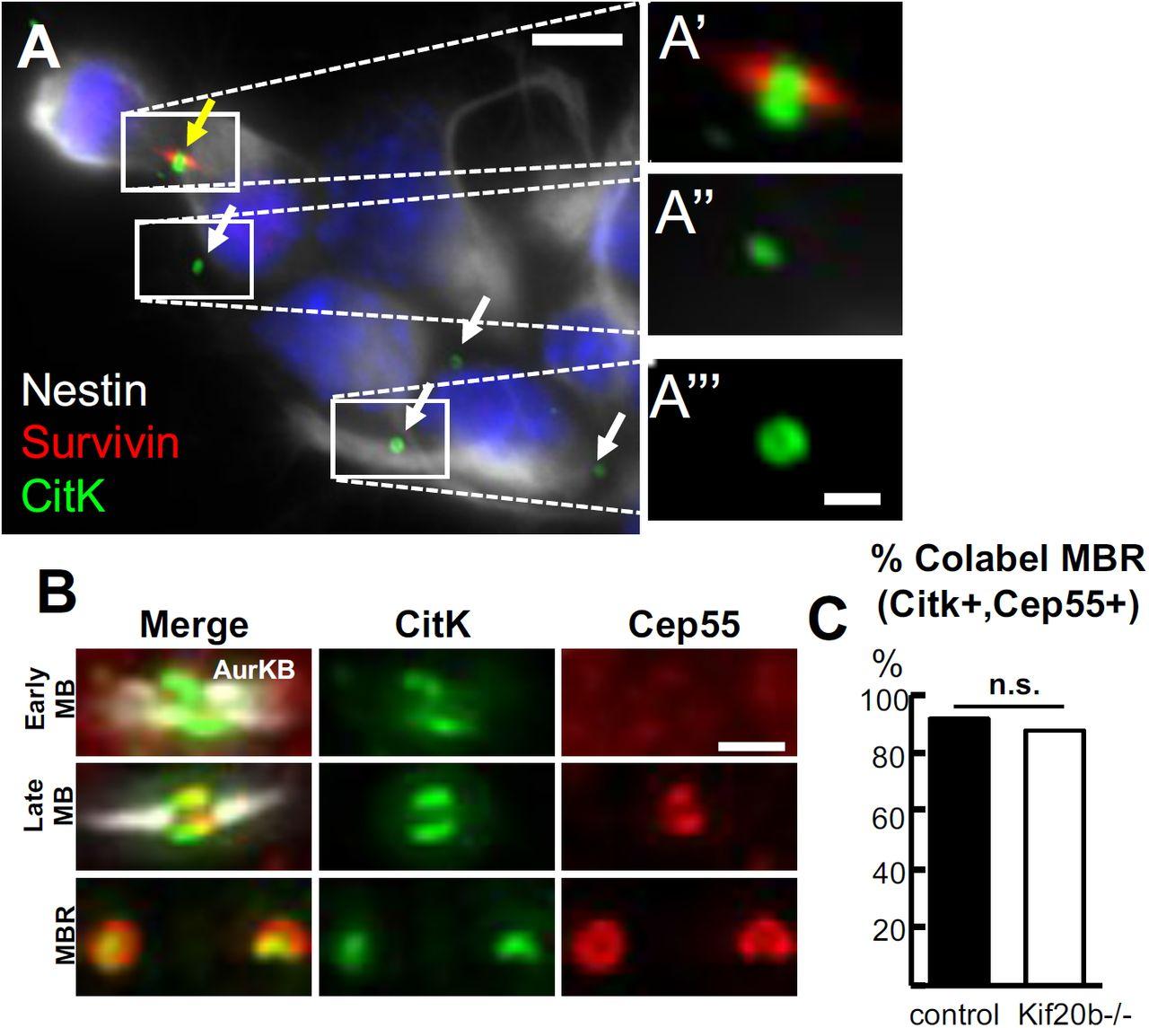 Cytokinetic abscission dynamics in neuroepithelial stem