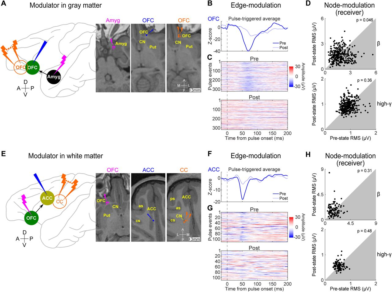 A Causal Network Analysis of Neuromodulation in the Cortico