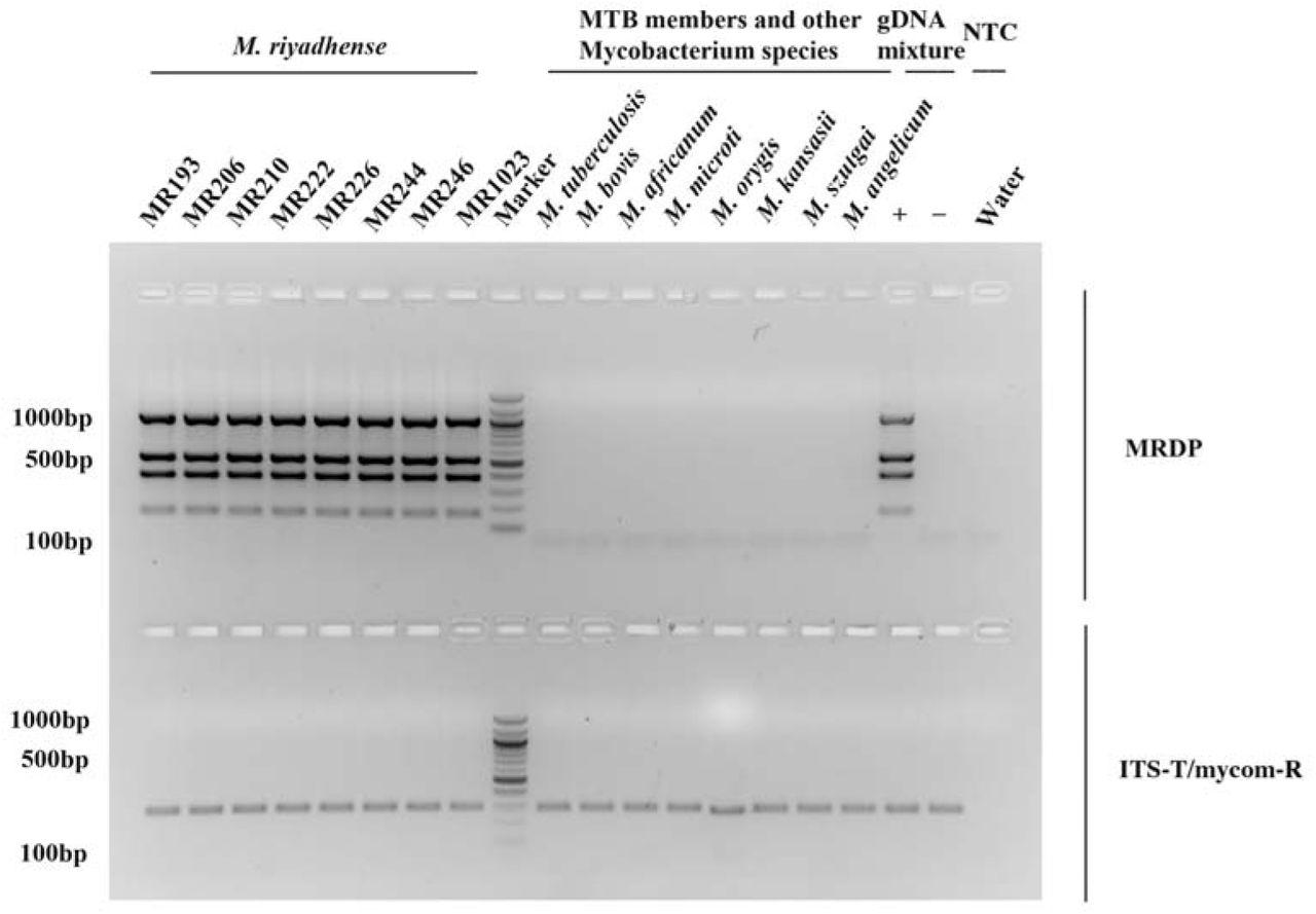 Mycobacterium riyadhense clinical isolates provide insights