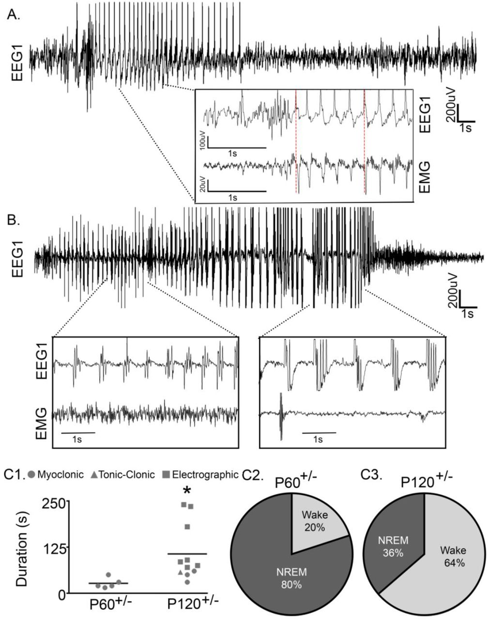 Low-dose Perampanel rescues cortical gamma dysregulation