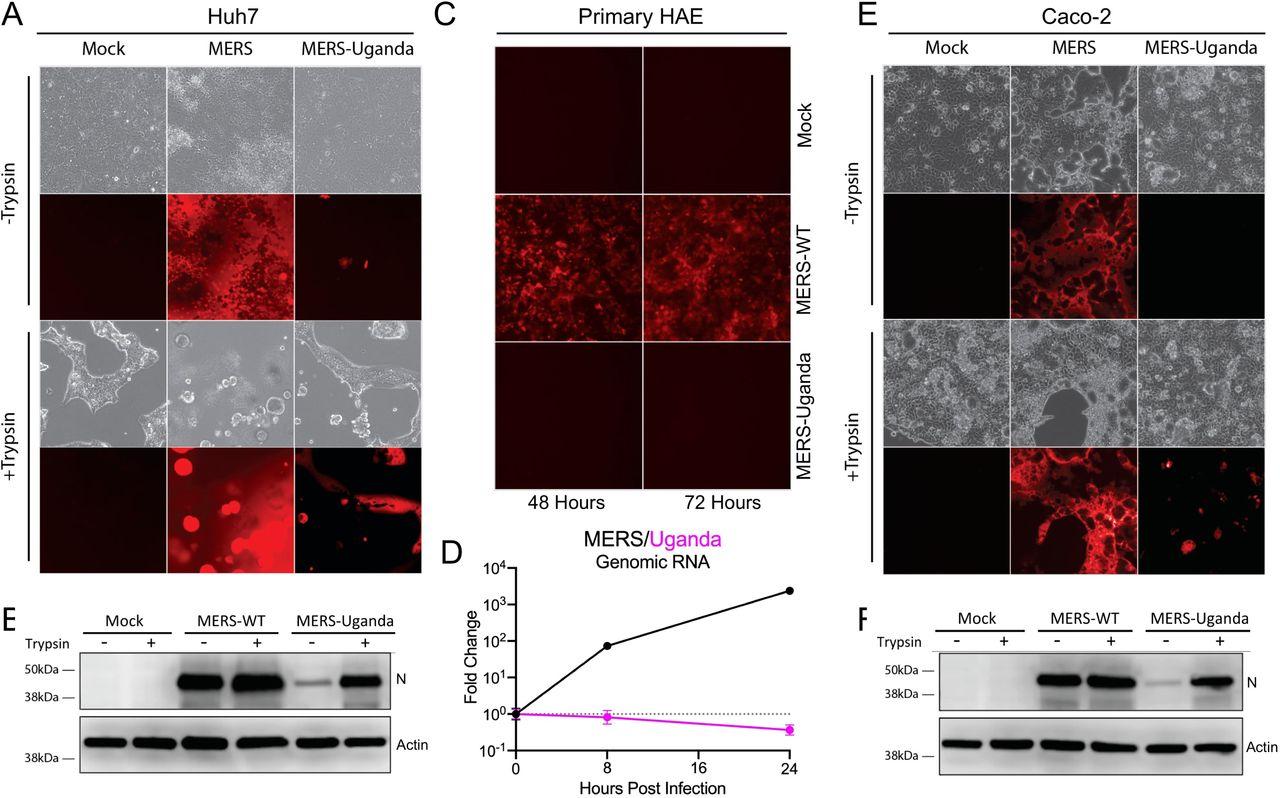 Trypsin Treatment Unlocks Barrier For Zoonotic Coronaviruses