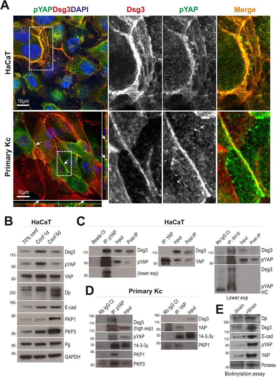 The desmosomal cadherin Desmoglein-3 regulates YAP and