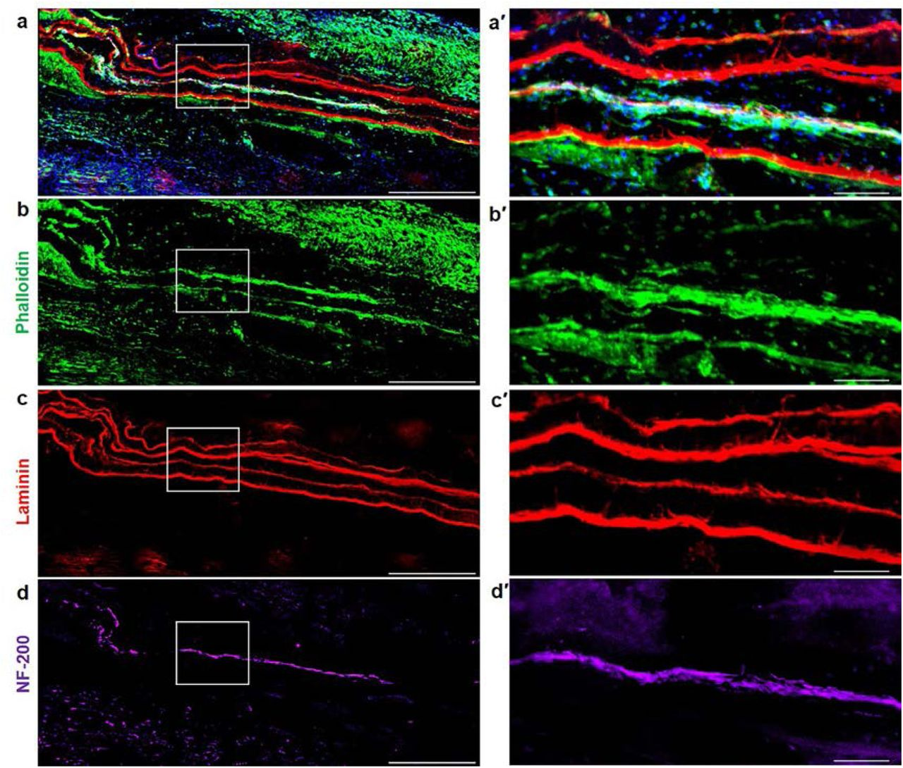 Cellular and Morphological Evaluation of Pre-Innervated Constructs at Acute Time Point Following Implantation in a VML Model. a-d ) Longitudinal sections near the repair site of animals implanted with nanofibers with motor neurons + myocytes (MN-MYO). The nanofiber sheets were coated with Laminin prior to culturing cells and hence the stacked sheets were identified based on Laminin stain (red). Scale: 500µm. a′-d′) Magnified view of the region inside the white box. Thick bundles of myocytes (Phalloidin: green) and motor axons (NF-200: purple) were observed within the stacked nanofiber sheets. Scale: 100µm.