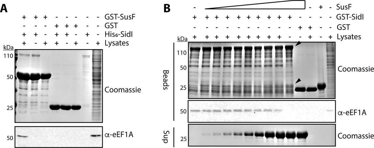 SusF does not impair interaction between SidI and eEF1A. (A) GST-SusF or GST alone were immobilized on magnetic glutathione agarose beads followed by incubation with 100 µg purified His6-SidI alone or that had been preincubated with lysates from HEK 293T cells as indicated (Lysates). Proteins were separated by SDS-PAGE and visualized by Coomassie staining or Western blot as indicated. (B) Lysates from E. coli expressing GST-SidI or GST alone were incubated with magnetic glutathione agarose beads and lysates from HEK 293T followed by 10, to 1000 µg of purified recombinant SusF (shown as increasing amounts in supernatants from beads). Proteins remaining on the beads were separated by SDS-PAGE and visualized by Coomassie stain or Western blot as indicated. GST-SidI (∼130 kDa) and SusF (∼27 kDa) are indicated with arrowheads. Data are representative of at least two independent experiments.