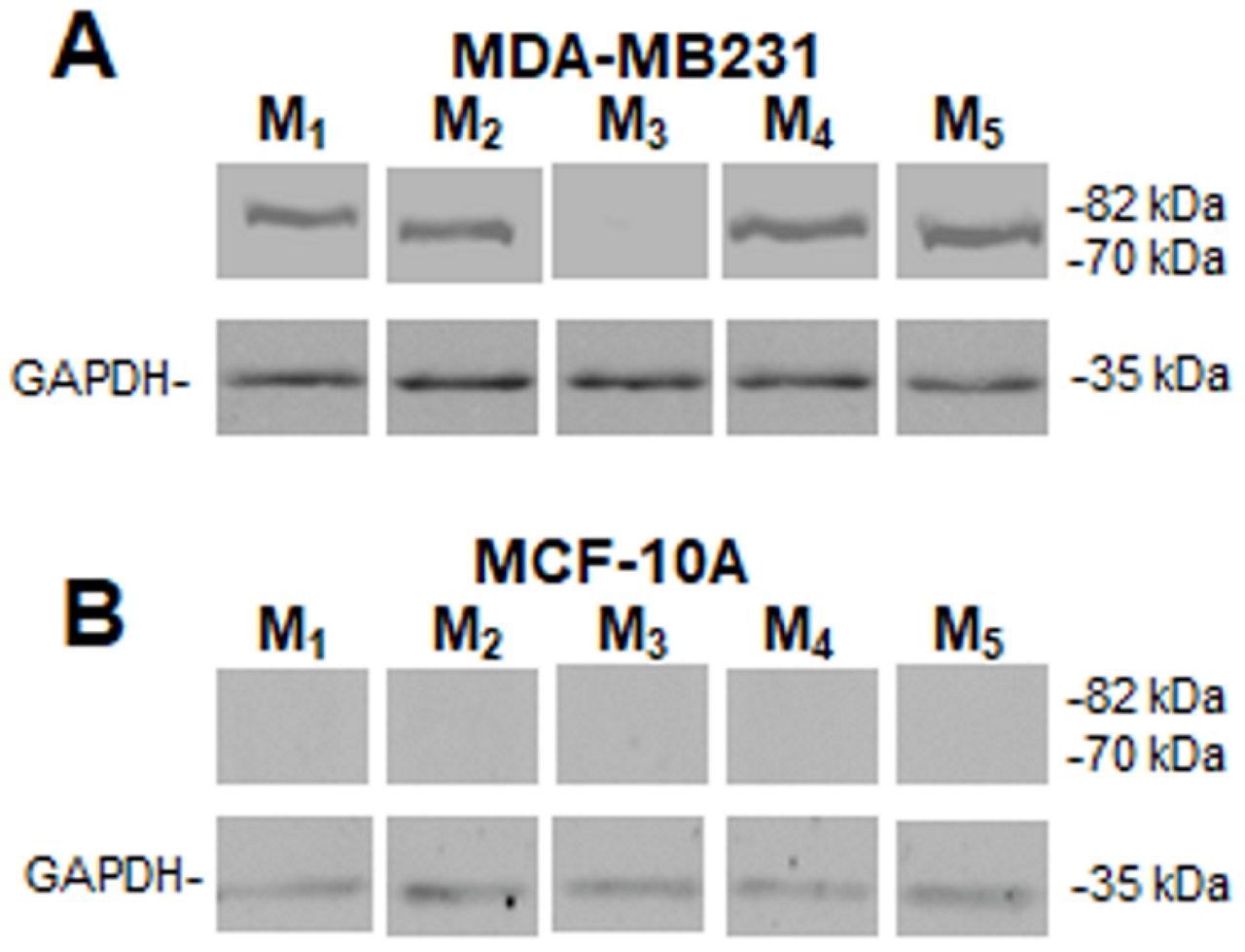 Muscarinic receptors' expression. Western blot assay to detect muscarinic (M) receptor subtypes in A) MDA-MB231cells or B) in MCF-10A cells. Molecular weights are indicated on the right. The expression of glyceraldehyde 3-phosphate dehydrogenase (GAPDH) protein was used as loading control. One representative experiment of 3 is shown.