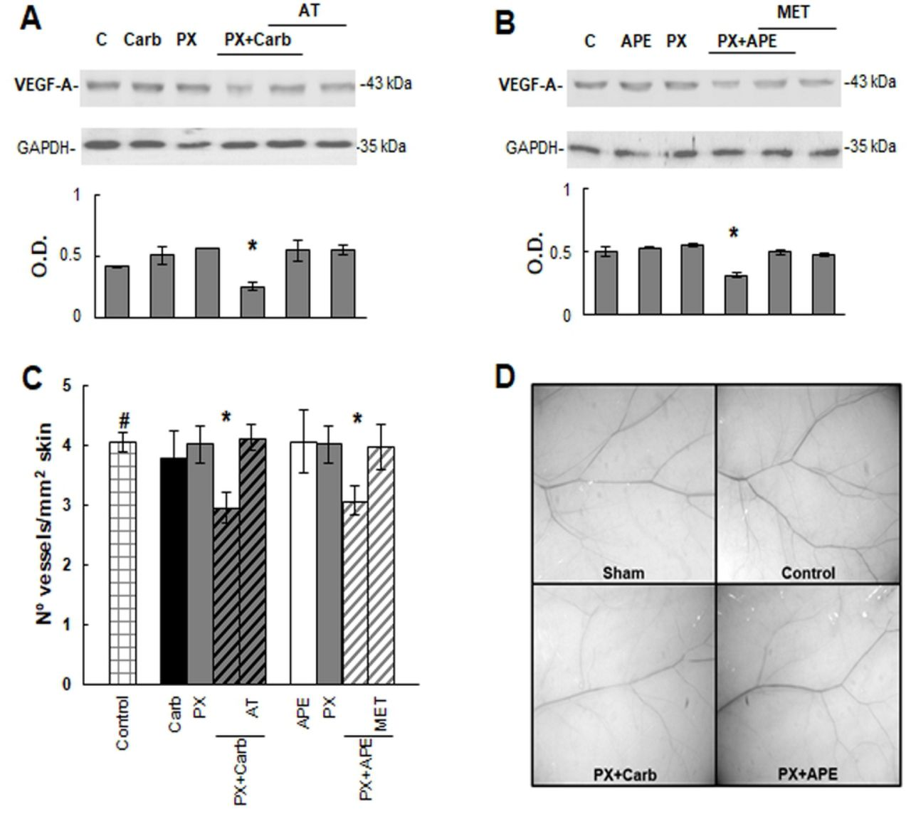 Tumor induced angiogenesis. To analyze the expression of vascular endothelial growth factor-A (VEGF-A) by Western blot, MDA-MB231 cells were treated with A) paclitaxel (PX) (10 −8 M) combined with carbachol (Carb) (8.6×10 −12 M) or B) with arecaidine propargyl ester (APE) (1.1×10 −5 M) in the absence or presence of atropine (AT) (10 −9 M) or methoctramine (MET) (10 −5 M) respectively. Molecular weights are indicated on the right. Densitometric analysis of the bands was expressed as optical density (O.D.) units relative to the expression of glyceraldehyde 3-phosphate dehydrogenase (GAPDH) protein used as loading control. One representative experiment of 3 is shown. C)  In vivo  neovascularization induced by MDA-MB231 cells in NUDE mice skin. Cells were inoculated as it was stated in Methods, and drugs were administered i.p. Values are mean ± S.E.M. of 3 experiments performed with 3 animals per group inoculated in both flanks. D) Representative photographs of mice skin from sham animals or inoculated with tumor cells (Control) without treatment or treated with PX+Carb or PX+APE. Magnification 6.4X. (#P