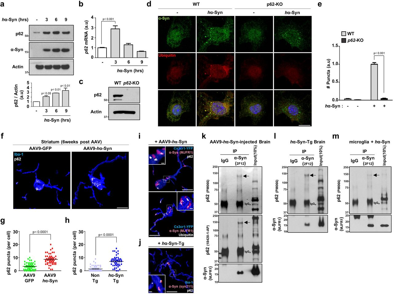 Transcriptional upregulation of autophagy receptor p62 mediates microglial sequestration and degradation of α-synuclein. (a) Microglia were treated with 250nM h α-Syn protein for the indicated time and assayed for W.B using antibodies against p62 and human α-synuclein. The levels of p62 protein were quantified in the lower panel. p values were calculated by One-way ANOVA with Newman– Keuls post hoc test. (b) After treatment of 250nM h α-Syn protein for the indicated time, the levels of p62 mRNA were examined by RT-qPCR. p62 mRNA was normalized to Actin mRNA. p values were calculated by One-way ANOVA with Newman–Keuls post hoc test. (c) The absence of p62 protein was confirmed in microglia obtained from p62 -KO mice compared to WT mice by W.B. (d, e) WT and p62 -KO microglia were treated with 250nM h α-Syn protein for 6 hours and stained with antibodies against human α-synuclein and ubiquitin ( d ). The number of h α-Syn/ubiquitin-positive puncta was quantified ( e ). p values were calculated by Two-way ANOVA with Bonferroni Post Hoc Test. Scale bar, 10 µm. (f-h) The number of p62 puncta was quantified in microglia at striatum of brains either from AAV- h α-Syn-injected mice (n=3, f, g ) or from h α-Syn-Tg mice (n=5, h ) compared to AAV-GFP-injected mice (n=3) and non-Tg mice (n=3), respectively. p values were calculated by Mann–Whitney U test. Scale bar, 10 µm. (i) At 6-weeks post-AAV- h α-Syn administration into Cx3cr1 CreER-IRES-Eyfp mice, brain slices were stained with antibodies against GFP/YFP, human α-synuclein, p62 (left panel), and ubiquitin (right panel). Scale bar, 10 µm; 1µm in the magnified box. (j) Brain sections from 10-months-old h α-syn-Tg mice were fixed and stained using antibodies against human α-synuclein, Iba-1, and p62. Scale bar, 10 µm; 1µm in the magnified box. (k, l, m) Human α-synuclein were immunoprecipitated from AAV - h α-Syn-injected brain ( k ), h α-Syn-Tg brain ( l ), and cultured microglia treated with 250nM h α-Syn protein for 6 hours ( m ). Arrows indicate the high-molecular-weight of p62. Data are representative of at least three independent experiments. All values are reported as mean ± SEM.