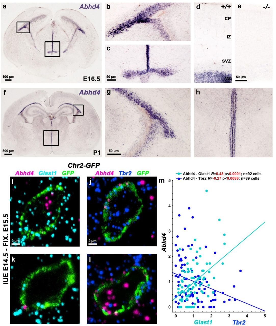 Abhd4 mRNA is expressed by radial glia progenitor cells in the germinative niches. a-h, Abhd4 mRNA is present exclusively in the ventricular zone along the lateral ( b,g ) and third ventricles ( c,h ) at both E16.5 ( a-d ) and P1 ( f-h ) wild-type (+/+) mice. The specificity of the Abhd4 riboprobe is validated in Abhd4-knockout (-/-) animals ( e ). CP, cortical plate; IZ, intermediate zone; SVZ, subventricular zone; VZ, ventricular zone. i-l, High-power confocal imaging outlines the plasma membrane of ChR2-GFP -electroporated cells and delimits multi-color RNAscope analysis into single cells within the heterogeneous and densely packed cell layer of the ventricular zone. Abhd4 mRNA typically colocalizes with the radial glia progenitor cell marker Slc1a3 mRNA (encoding GLAST1 protein) ( i ), whereas other cells are often devoid of both markers ( k ), or either express Eomes (encoding TBR2 protein), a marker for committed daughter cells ( j ), or Abhd4 alone ( l ). m, Correlation analysis of Abhd4 mRNA levels with Glast1 or Tbr2 mRNA levels in single cells (Spearman's rank correlation, Abhd4/Glast1: R = 0.4814, P