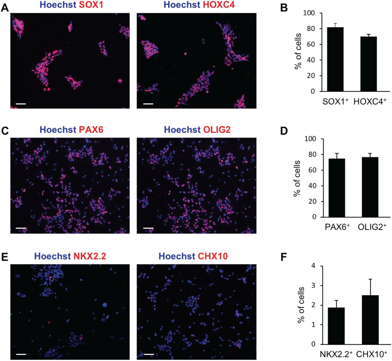Generation of an enriched population of human iPSC-derived motor neuron progenitor cells. (A-B) Representative images (A) and quantification (B) of neural progenitor cells (NPCs) subjected to immunocytochemistry with either anti-SOX1 or anti-HOXC4 antibodies 6 days after the start of the induction protocol. (C-D) Representative images (C) and quantification (D) of MNPCs subjected to immunocytochemistry with either anti-OLIG2 or anti-PAX6 antibodies 12 days after the start of the induction protocol. (E-F) Representative images (E) and quantification (F) of V3 interneuron progenitors (INPs) subjected to immunocytochemistry with anti-NKX2.2 antibody or V2 INPs visualized with anti-CHX10 antibody, 12 days after the start of the induction protocol. For all graphs, n = 3 cultures (with > 500 cells in random fields for each culture). Scale bars, 50 μm.
