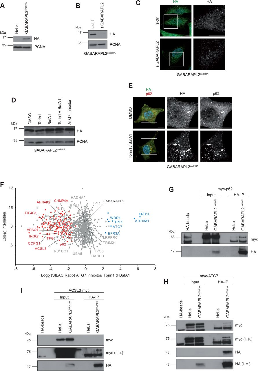 Interaction analysis of endogenously tagged hATG8 proteins. A , GABARAPL2 endoHA and parental HeLa cell lysates were analyzed by immunoblotting using anti-HA and -PCNA antibodies. The latter was used as loading control. B,C , GABARAPL2 endoHA cells were reversely transfected for 72 hrs with non-targeting (sicrtl) or GABARAPL2 siRNA followed by lysis and immunoblot analysis ( B ) or fixation and immunolabeling ( C ) using an anti-HA antibody. Scale bar: 10 µm. D,E, GABARAPL2 endoHA cells were treated as indicated and subjected to lysis and immunoblotting ( D ) or fixation and immunolabeling ( E ) using anti-HA and -p62 antibodies. Scale bar: 10 µm. Arrowheads indicate colocalization events. F, Scatterplot represents interaction proteomics of SILAC labeled GABARAPL2 endoHA cells differentially treated with Torin1 and BafA1 (light) or ATG7 inhibitor (heavy). Significantly enriched proteins upon Torin1 and BafA1 combination treatment or ATG7 inhibition are highlighted in red and blue, respectively. Proteins in grey are unchanged. G-I, Immunoblot analysis of anti-HA immunoprecipitates from lysates derived from parental HeLa and GABARAPL2 endoHA cells transiently transfected for 48 hrs with myc-tagged ATG7 ( G ), p62 ( H ) or ACSL3 ( I ).