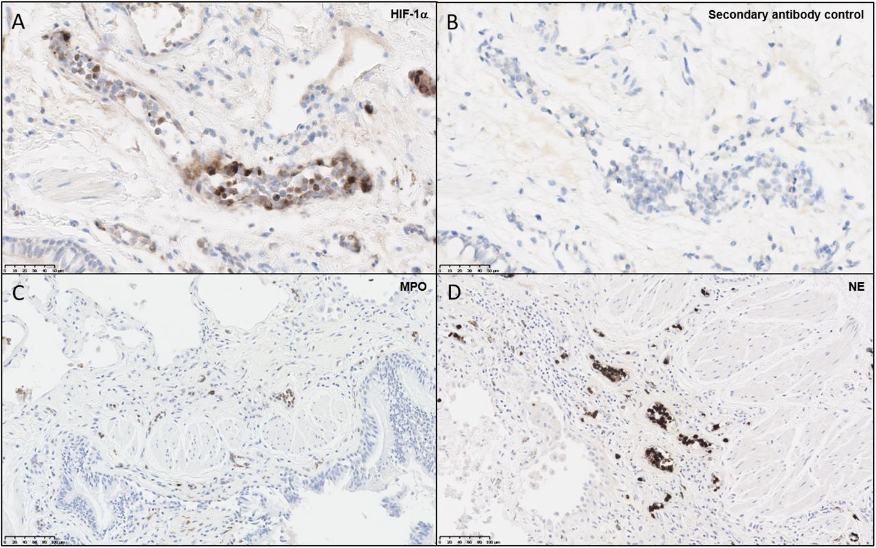 Neutrophils and endothelial cells express <t>HIF-1α</t> within the ILD lung. Paraffin-embedded ILD lung biopsies were cut and stained for immunohistochemical evidence of hypoxia and neutrophil infiltration. (A) Slides stained for HIF-1α displayed positive brown staining within microvascular endothelial cells and polymorphonuclear cells, whilst (B) secondary antibody controls did not display positive staining. To verify whether neutrophils were present in the ILD lung, additional stains were performed for (C) MPO and (D) NE, both of which displayed positive brown stains within blood vessels. Abbreviations: HIF-1α, hypoxia-inducible factor 1α; MPO, myeloperoxidase; NE, neutrophil elastase.