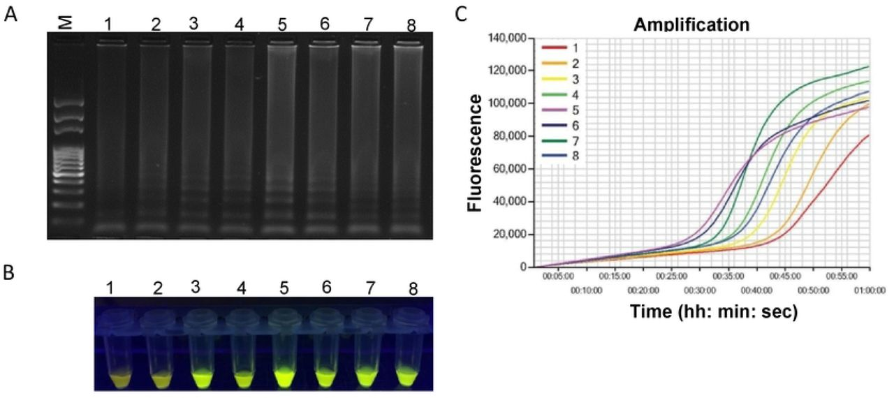 Optimization of incubation temperature for LAMP reaction. Assessment was based on (A) agarose gel electrophoresis of the LAMP products (B) visualization after addition of <t>SYBR</t> <t>Green</t> I nucleic acid stain into the reaction tubes under UV light exposure, fluorescent green color represents positive amplification; (C) real-time amplification by Genie® III. Here, 1: 66°C, 2: 67° C, 3: 68 °C, 4: 69:° C. 5: 70 °C, 6: 71°C, 7: 72°C and 8: 73°C. Lane M: 100 bp DNA ladder.