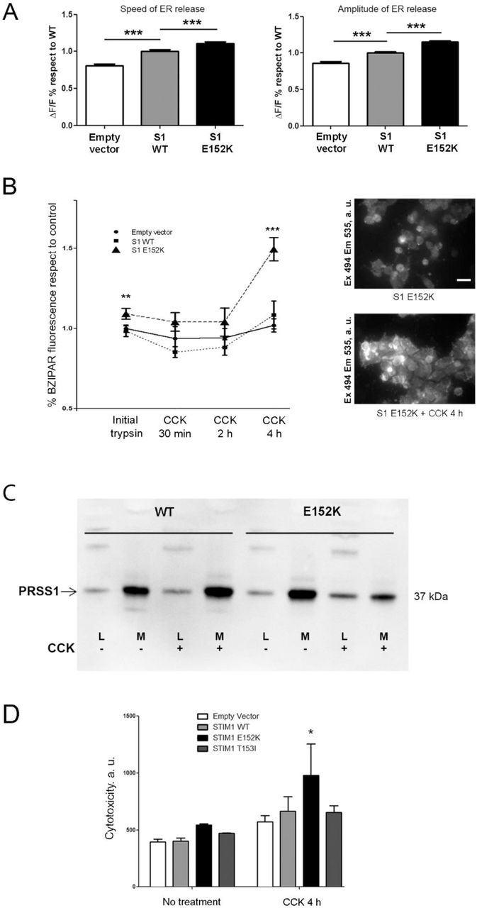 Functional consequences of E152K STIM1 in rat pancreatic acinar cells. (A) Average values of the speed (left hand panel) and amplitude (right hand panel) of ER Ca 2+ release induced by the addition of 1 nM CCK in AR42J cells transfected with E152K STIM1, WT STIM1 or an empty vector. Values were normalized to WT STIM1. n = 449 (empty vector), 705 (WT) or 512 (E152K). ( B ) Left hand panel, quantification of BZiPAR fluorescence at different time points in cells expressing WT STIM1, E152K STIM1 or empty vector after CCK treatment (1 nM). Right hand panel, representative images of BZiPAR fluorescence in E152K STIM1-expressing cells, before and after 4h of CCK treatment. Cells were excited at 494 nm for 150 ms, and fluorescence emission was collected at 535 nm. Scale bar, 50 µM. ( C ) Analysis by Western blot of PRSS1 intracellular expression and its presence in the conditioned medium before and after stimulation with CCK (1 nM) of cells expressing E152K or WT STIM1. ( D ) Quantification over time of fluorescence signal evaluating cytotoxicity <t>(celltox)</t> in cells transfected with E152K STIM1, T153I STIM1, WT STIM1 or an empty vector after CCK addition (1 nM). Cell toxicity was measured using the CellTox™ Green Cytotoxicity Assay kit (Promega), and results were normalized to living cell numbers as evaluated with the CellTiter 96 ® AQueous One Solution Cell Proliferation Assay Kit (Promega) following the manufacturer's instructions.