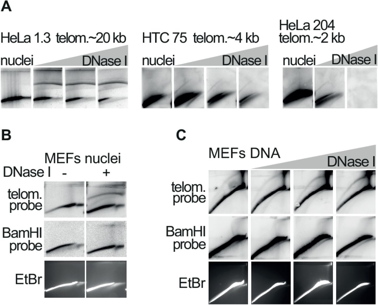 I-loops are induced by single-strand damage at telomeric repeats (related to Figure 5 ). A. 2D-gel analysis showing that the t-circle arc is strongly induced by formation of nicks and gaps at human telomeres. Nuclei prepared from HeLa 1.3 cells (this HeLa clone has long telomeres around, ~20 kb in average) were incubated with either 0; 0.5; 1 or 2.5 μg/ml of <t>DNase</t> I for 8 minutes at RT. Nuclei prepared from HTC75 cells (with telomeres around 4 kb in average) and from HeLa 204 cells (with telomeres around, ~2 kb in average) were incubated with either 0; 5; 10 or 20 μg/ml of DNase I for 8 minutes at RT. The nuclei were then processed for 2D-gel analysis, as described in Figure 5A . B. 2D-gel analysis showing that DNase I treatment does not induce the t-circle arc in the bulk DNA or at the BamHI repeats. In a similar experiment as the one described in Figure 5A , nuclei were treated with 2.5 μg/ml of DNase I. Genomic was digested with BglI, split in two and separated on 2D-gels, in duplicate. After blotting, one membrane was hybridized with a probe recognizing the TTAGGG repeats, while the other with a probe recognizing the mouse BamHI repeats. The ethidium bromide staining of one of the second-dimension gels is shown at the bottom. C. 2D-gel analysis showing that DNase I treatment on isolated DNA does not induce the t-circle arc in the bulk DNA or at the BamHI repeats. DNA from the same experiment shown in Figure 5B , was digested with KpnI, split in two and then separated in 2D-gels, in duplicate. After blotting, one membrane was hybridized with a probe recognizing the TTAGGG repeats and the other with a probe recognizing the mouse BamHI repeats. The ethidium bromide staining of one of the second-dimension gels is shown at the bottom.