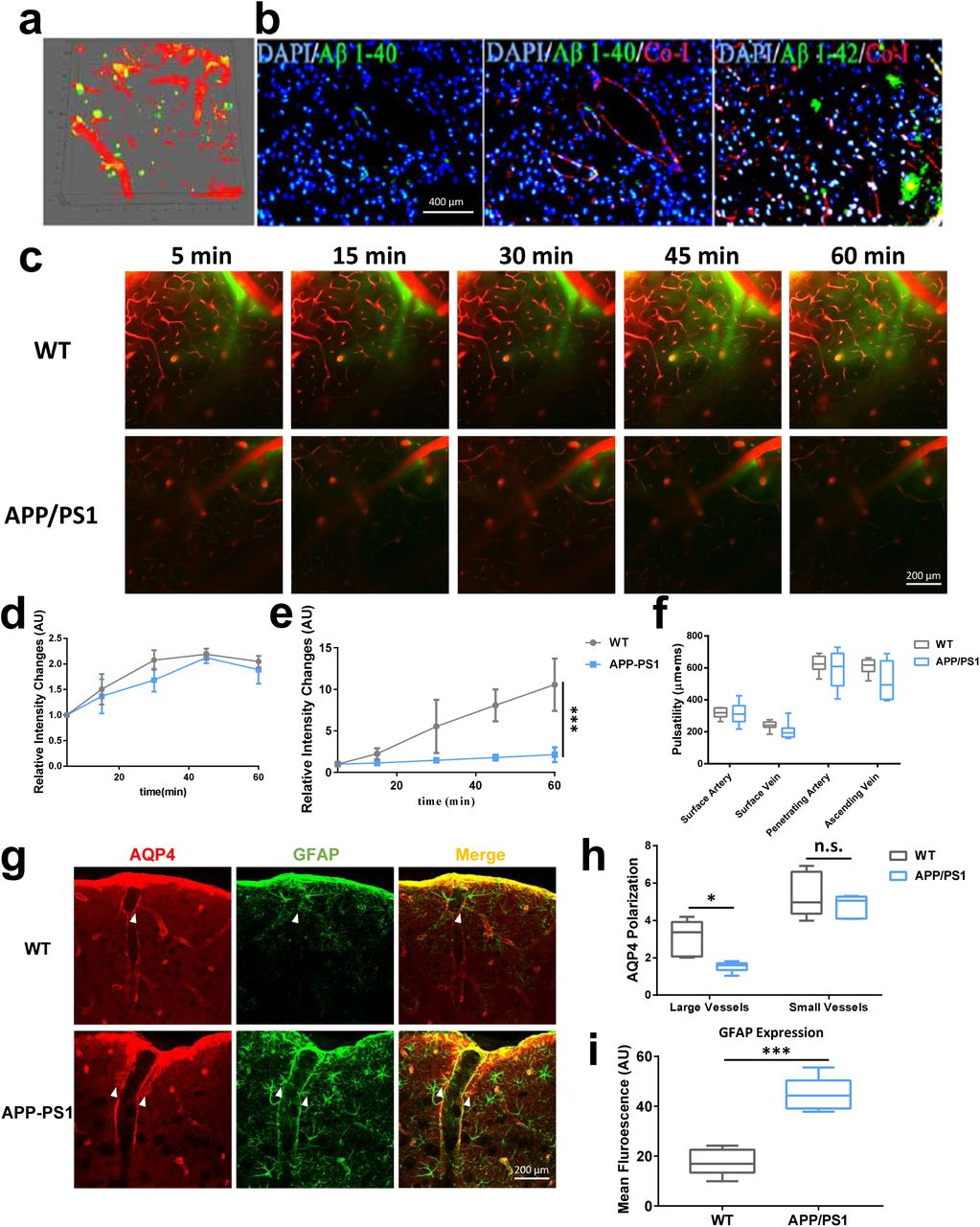 Impairment of glymphatic clearance and deposition of Aβ plaques in APP-PS1 mice. (a) In vivo imaging of Aβ deposition in the cerebral cortex (FSB: green). Aβ deposition was evident in the parenchyma with no distinct CAA. (b) Immunology of Aβ 1–40 and Aβ 1–42 in APP-PS1. Significant numbers of Aβ 1–42-labeled amyloid plaques were observed in the parenchyma, but no marked deposition of Aβ 1–40. (c) Representative images of paravascular CSF tracer clearance at 100 μm below the cortical surface in APP-PS1 indicating severe impairment in penetration of fluorescence tracer (e) while no changes in paravascular movement was observed (d). (h-i) Expression of AQP4 and GFAP in cortex and hippocampus. Compared with WT control mice, APP-PS1 mice displayed significant decrease in AQP4 polarization and exhibited a marked increase in GFAP expression in the cortex (n=6 mice per group). No significant pulsatility changes were observed between APP-PS1 and WT control mice (f) (n=7-8 vessels per group).