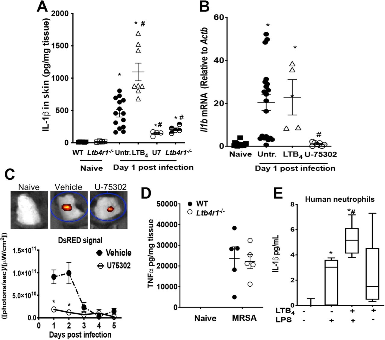 LTB 4 is required for IL-1β production. A) Quantification of IL-1β and B) Il1b mRNA expression in the skin of <t>C57BL/6,</t> Ltb4r1 −/− , C57BL/6 treated with a topical ointment containing LTB 4 or C57BL/6 treated with a topical ointment containing BLT1 antagonist U-75302 24h after MRSA infection. C) IVIS scanning of pIL1DsRed mice treated with a topical ointment containing BLT1 antagonist U-75032 or vehicle. TNF-α quantification in D) peritoneal macrophages treated with LTB 4 or BLT1 antagonist before MRSA infection and E) skin biopsy from wild-type (WT) or Ltb4r1 −/− mice after 24h MRSA infection. F) IL-1β quantification from human neutrophils isolated from healthy blood donors treated with LTB 4 and LPS. Data are the mean ± SEM of 3-10 mice. *p
