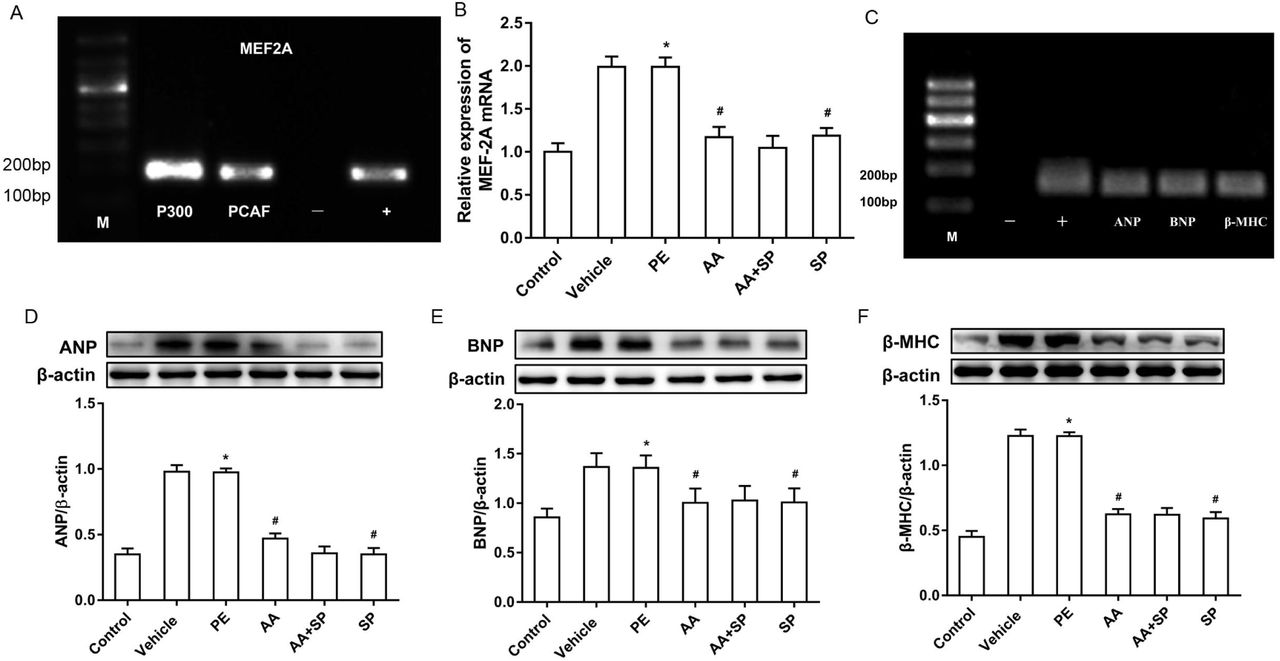 Effects of AA and the JNK inhibitor SP600125 on the expression of cardiac hypertrophy-related genes in PE-induced hypertrophic cardiomyocytes (A) Chromatin immunoprecipitation (ChIP)-PCR results demonstrating the binding of P300 and PCAF to the MEF2A promoter. (-) negative control, amplification of DNA fragments after precipitation with normal mouse IgG; (+) positive control, amplification of DNA fragments after precipitation with anti-RNA polymerase II antibody. ( B) qRT-PCR results showing that the mRNA expression of MEF2A was higher in PE-induced hypertrophic cardiomyocytes than in control cardiomyocytes, whereas histone acetyltransferase (HAT) and JNK inhibition with AA and SP600125, respectively, prevented MEF2A overexpression in these cells. ( C) ChIP-PCR demonstrated that MEF2A could bind the promoters of atrial natriuretic peptide ( ANP ), brain natriuretic peptide ( BNP ), and <t>beta-myosin</t> heavy chain ( β-MHC ). Input: positive control, IgG: negative control. ( D, E, and F) Western blotting showing that expression of the cardiac hypertrophy-related proteins ANP, BNP, and β-MHC was higher in the PE group than in the control group, whereas the HAT inhibitor AA or the JNK inhibitor SP600125 counteracted this effect. * P