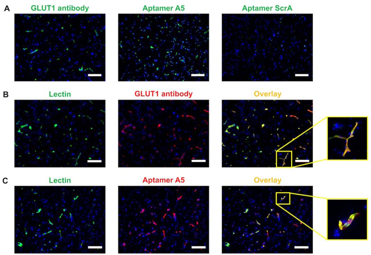 Specific binding of aptamer A5 to GLUT1 in human tissue. (A) Human brain cortical tissue was labeled with a GLUT1 <t>Alexa</t> Fluor 488-conjugated antibody, FAM-labeled aptamer A5, or FAM-labeled scrambled aptamer. (B) Human tissue was co-labeled with lectin and the GLUT1 antibody. (C) Human tissue was co-labeled with lectin and the Alexa Fluor 647-labeled aptamer A5. All immunolabeling was performed with two separate tissue samples, with three images taken from each tissue section to validate expression patterns. The representative images are prov ided with DAPI co-labeling (blue) (scale bar: 200 μm).