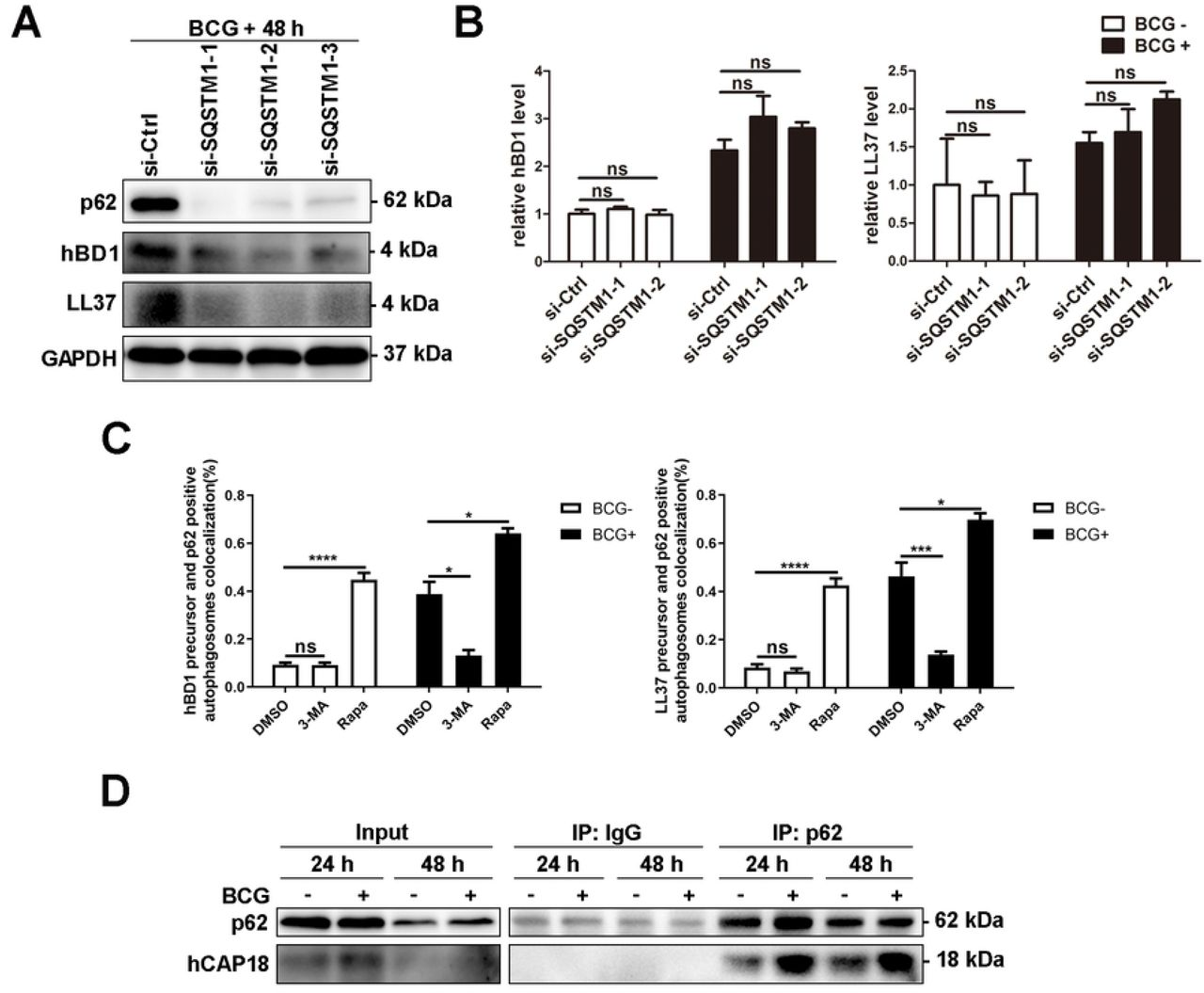 Autophagy adapter protein p62 controls the production of active AMPs by interacting with AMP precursors. (A B) Silencing P62 affected the active peptide levels of hBD1 and LL37. <t>A549</t> cells were transiently transfected with si-control or si-SQSTM1 to silence P62 and then infected with BCG. The expression of hBD1 and LL37 was detected using western blotting and real-time PCR. (C) The autophagic level of A549 cells affected the co-localization level of hBD1/LL37 precursor and p62-positive autophagosomes. A549 cells stably expressing green fluorescent protein (GFP)-tagged LC3 (GFP-LC3) and mCherry Fluorescence Protein (mCherry)-tagged LL37 precursor (LL37 precursor-mCherry) were pretreated with 3-MA and rapamycin and infected with BCG as described above. GFP-LC3 puncta ( > 1 μm) were observed and counted under confocal microscopy. Co-localization of hBD1/LL37 precursor, p62, and GFP-LC3, labeled using Alexa Fluor 647-coupled antibody against p62, was detected by confocal microscopy. (D) Direct interaction could be observed between p62 and hCAP18. A549 cells were infected with BCG for 24 and 48 h. The interaction between p62 and hCAP18 was detected by Co-IP with anti-p62 antibody followed by western blotting with anti-p62 and anti-hCAP18 antibodies. Data are expressed as the means ± standard deviation (s.d.) * p