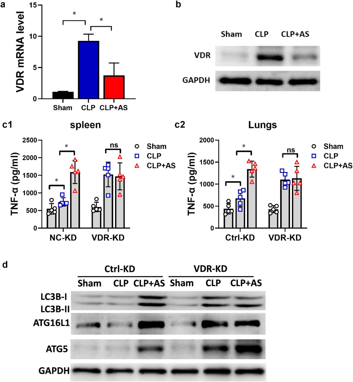 Knockdown of VDR results in the loss of the effect of AS in vivo . (a) Effect of AS on VDR mRNA level of PMs from CLP mice (n = 5). (b) Effect of AS on VDR protein level of PMs from CLP mice. (c) Change in the effect of AS on the level of TNF-α and IL-6 in the spleen (c1) and lungs (c2) from VDR-KD mice (n = 5). (d) Changes in the level of LC3B-I, LC3B-II, ATG16L, and ATG5 protein expressions in the spleens of VDR-KD mice. (* P