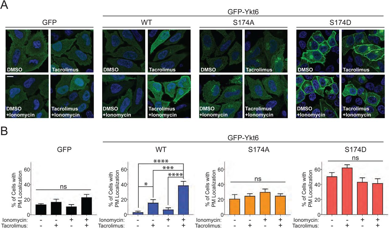 The intracellular localization of Ykt6 is dependent on calcineurin activity. (A) Representative immunofluorescence images of transiently transfected HeLa cells with GFP-tagged wild-type (WT) or indicated phosphomutants of Ykt6. Cells were treated with ionomycin (1μM) and/or Tacrolimus (1μM) for 30 minutes. Nuclei (blue) are stained with DAPI. Scale bar is 10μm. (B) Quantification of cells with GFP plasma membrane localization as shown in (A). N=3 *p