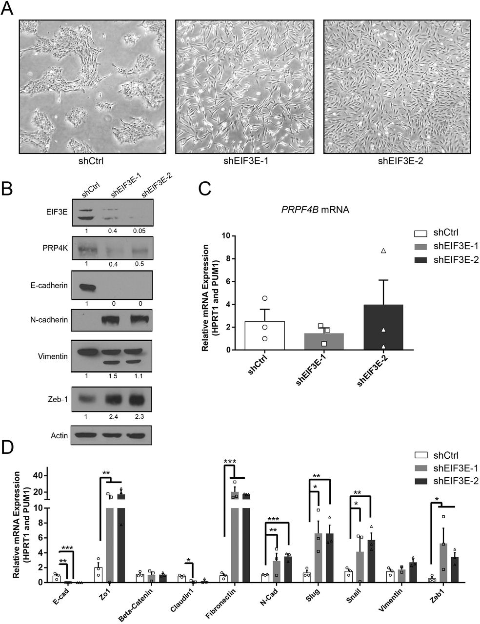 The induction of EMT by depletion of eIF3e decreases PRP4K protein expression in MCF10A cells. A ) Phase contrast micrographs of control (shCtrl) and eIF3e-depleted cells (shEIF3E-1 and shEIF3-2). B ) Western blot analysis of whole cell lysates of MCF10A shCtrl and shEIF3E cells for markers of EMT as indicated. C ) Quantitative PCR of PRP4K gene ( PRPF4B ) mRNA expression in MCF10A shCtrl and shEIF3E cells. D ) Quantitative PCR analysis of EMT-associated gene expression (as indicated) in MCF10A shCtrl and shEIF3E cells. N = 3, error bars= SEM. Significance was determined by a t-test. *=p