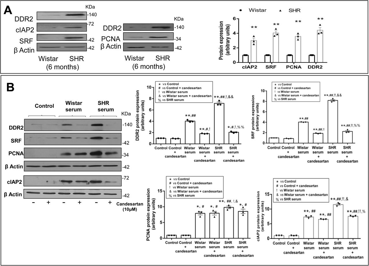 Enhanced expression of DDR2 correlates with enhanced levels of SRF, cIAP2 and PCNA in freshly isolated cardiac fibroblasts from Spontaneously Hypertensive Rats. ( A ) Cardiac fibroblasts freshly isolated from 6-month old male SHR and Wistar rats were analysed by western blotting for levels of cIAP2, SRF, PCNA and DDR2 with β-actin as loading control. Significance was determined by Student's t test, ** p
