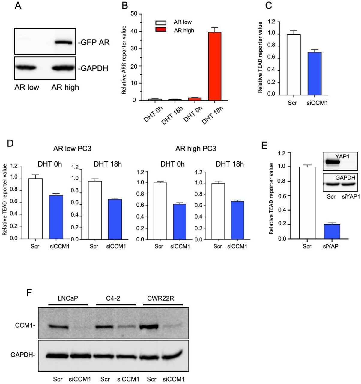 CCM1-mediated regulation of Yes-associated protein (YAP)/transcriptional co-activator with PDZ-binding motif (TAZ) signaling. (A) An androgen receptor (AR) overexpression plasmid was stably transfected in WT PC3 cells, and individual PC3 clones were sorted into AR high and AR low groups according to the expression level of ectopic AR. (B) PC3 AR high (red box) or low (white box) cells were grown in medium supplemented with 10% charcoal-stripped FBS and stimulated with 1 µM DHT for the indicated time points, and ARR reporter activities were measured using luciferase assays. (C) CCM1 was RNAi-silenced in DU145 cells grown in medium containing 10% FBS, and TEAD reporter activity was analyzed. (D) CCM1 was RNAi-silenced in AR low (left two panels) or AR high (right two panels) PC3 cells grown in 10% charcoal-stripped FBS supplemented medium with or without DHT stimulation as indicated, and TEAD reporter activity was analyzed. Reporter values are presented relative to that in each scramble control. (E) YAP1 was suppressed via RNAi in LNCaP cells, and TEAD reporter activity was analyzed. Suppression of YAP1 was confirmed via immunoblotting (Inset). (F) The representative degree of CCM1 suppression in LNCaP, C4-2, and CWR22r cells.