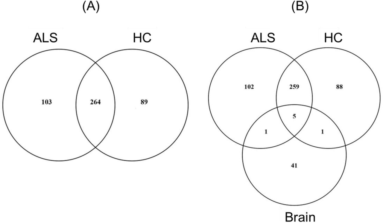 Proteins identified by LC-MS/MS in circulating protein aggregates (CPA) enriched from ALS and HC pooled plasma samples and from aggregates enriched from brain. (A) Venn diagram showing CPA proteins unique to or shared by ALS and HC. (B) Venn diagram showing HC and ALS CPA proteins shared by brain aggregates. Five proteins were expressed in all 3 aggregate groups (actin cytoplasmic 1, tubulin alpha-4A chain isoform 2, clathrin heavy chain 1 isoform 2, collagen alpha-1(VI) and plectin isoform 7), while brain aggregates shared only one protein with ALS and HC CPA (cytoplasmic dynein 1 heavy chain 1 and collagen alpha-2(VI), respectively).