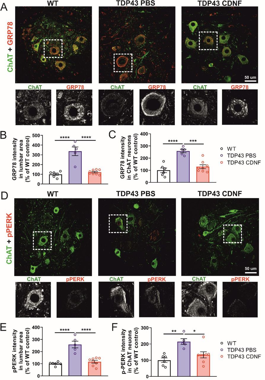CDNF administration attenuates the expression of UPR markers in the spinal cord of ChAT-tTA/TRE-TDP43-M337V rats at 21 days after transgene activation. ( A ) Representative fluorescence images of ChAT (Green) and GRP78 (Red) protein expression in PBS/CDNF-treated ChAT-tTA/TRE-TDP43-M337V compared to WT controls. Scale bar 50 µm. ( B ) Quantification of the pixel value of GRP78 in the lumbar ventral horn area. ( C ) Quantification of the pixel value of GRP78 in the ChAT + MNs. ( D ) Representative fluorescence images of ChAT (Green) and p-PERK (Red) protein expression in PBS/CDNF-treated ChAT-tTA/TRE-TDP43-M337V compared to WT controls. Scale bar 50 µm. ( E ) Quantification the of pixel value of p-PERK in the lumbar ventral horn area. ( F ) Quantification of pixel value of GRP78 within ChAT + MNs. Mean ± SEM, n=5-8/group. *p