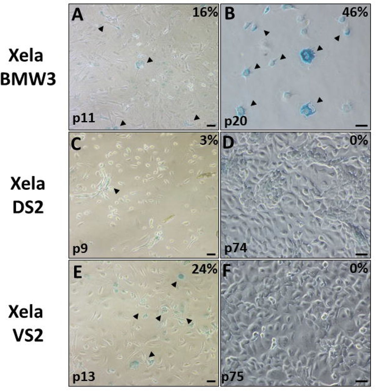 Senescence associated β-galactosidase activity of Xela DS2 and Xela VS2 cells from early and established cultures. Xela DS2 and Xela VS2 cells were tested for senescence associated β-galactosidase activity appear blue. Photomicrographs of Xela BMW3 cells at passage 11 (A), Xela DS2 cells at passage 9 (C), Xela VS2 cells at passage 13 (E), Xela BMW3 cells at passage 20 (B), Xela DS2 cells at passage 74 (D), and Xela VS2 cells at passage 75 (F). Xela BMW3 cells were used as a positive control for β-galactosidase activity. The percentages of β-galactosidase positive cells are indicated in the top-right hand corner of each image. Scale bars represent a distance of 50 μM.