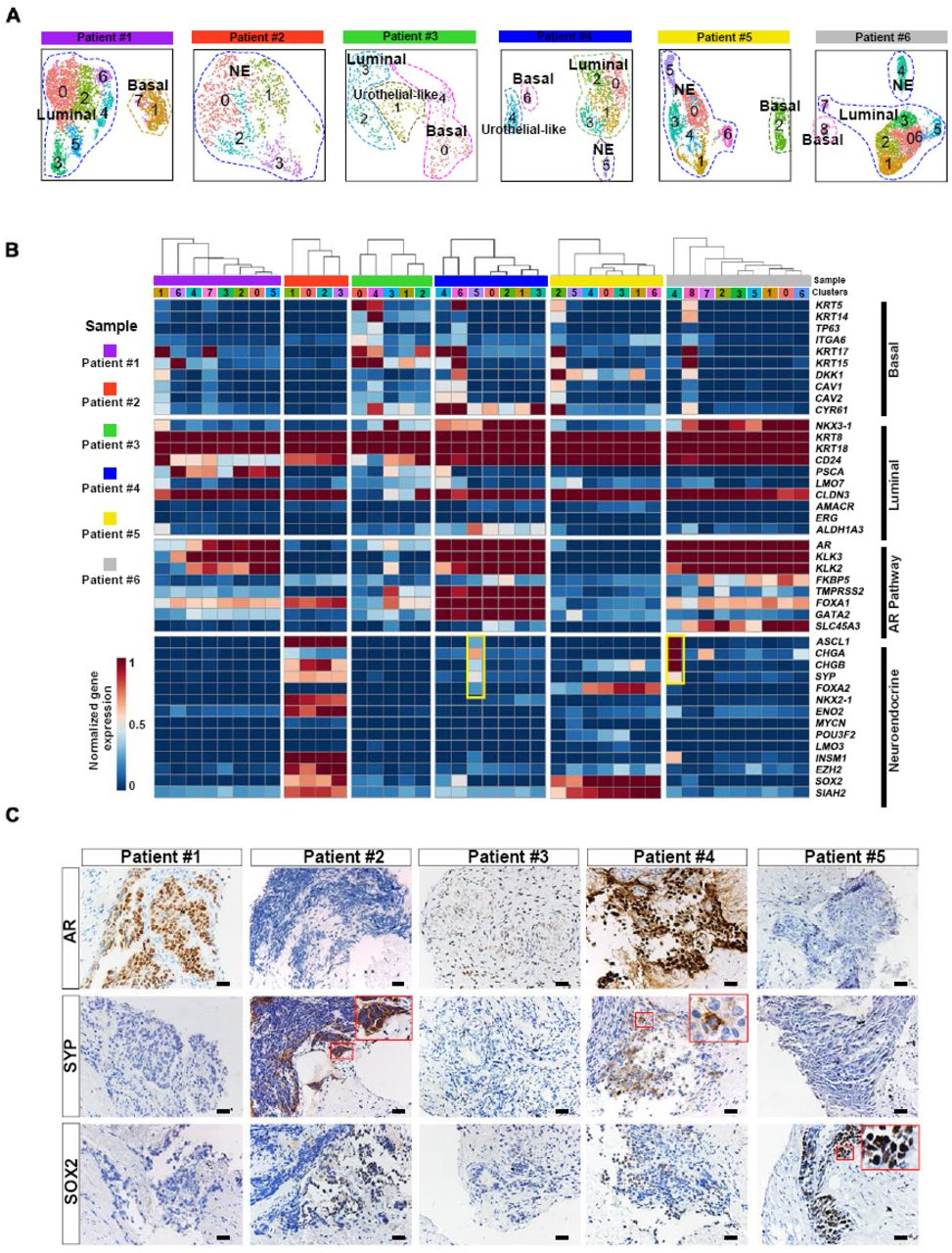 Intratumor heterogeneity analyses reveal different extents of NE differentiation ( A ) UMAP visualization of epithelial cell sub-clusters from each sample. ( B ) Heatmap depicting prostate lineage marker genes and AR pathway gene expression levels in epithelial cell sub-clusters from each sample. Those high-lighted in yellow frame showed cluster 5 in patient #4 and cluster 4 in patient #6 was NE sub-clusters. ( C ) Immunohistochemistry (IHC) staining for AR, SYP and SOX2 in sections from 5 samples. Scale bars represent 50μm.