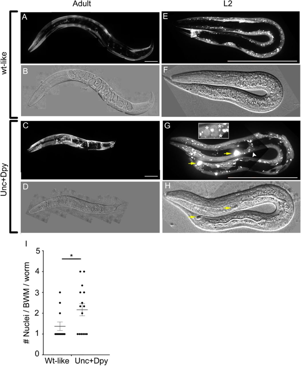 EFF-1 expression in BWMs induces their fusion ( A-C ) Confocal images of wt-like adult worms with membrane bound ( MB ) myo-3p::MB::YFP (cyan) and extrachromosomal array containing myo-3p:: EFF-1, myo-3p:: mCherry (magenta). ( D-F ) Confocal images of Unc+Dpy [ myo-3p::MB::YFP (cyan); myo-3p::EFF-1, myo-3p::mCherry] . Arrows, unfused BWMs with MB (cyan). Note only two unfused BWMs, all the others appear fused with no MB separating them. Insets correspond to white-dotted area. Scale bars 100 µm. See also Movie S1.